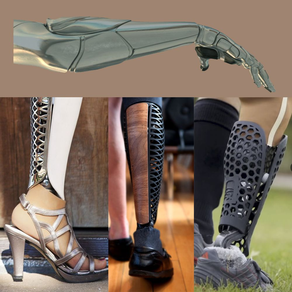 prosthetics essay Prosthetics have changed a lot these past years and through the advancements in technology, they can improve even more amputees, mostly.