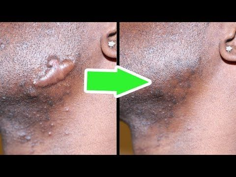 make it disappear fast get rid of keloids at home with