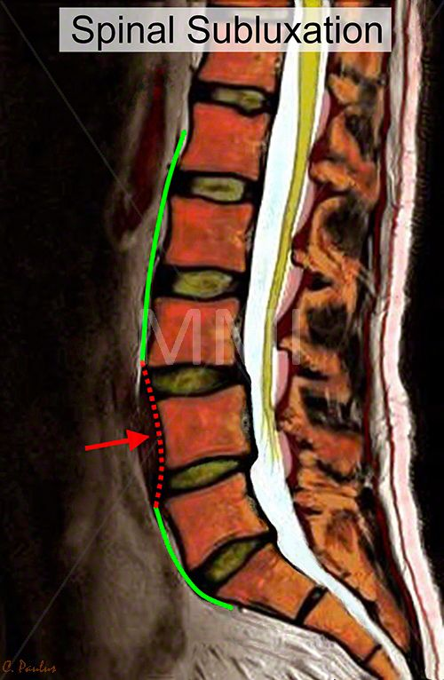 Chiropractic Image Color Mri Lumbar Spine Subluxation Back Pain