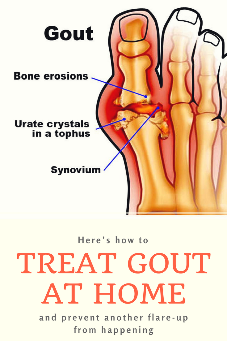 Here S How To Treat Gout At Home And Prevent Another Flare Up From