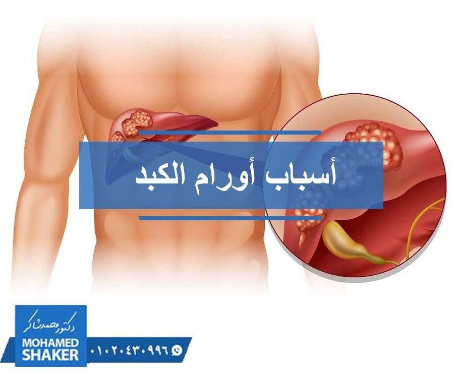 فان الكبد يصاب بعدة أمراض منها الحاد والمزمن وأكثر الأمراض شيوعا هي الفيروسات فمنها E D C B A ويعتبر Bو C من أهم مسببات التليف ومن ث Siva Shaker