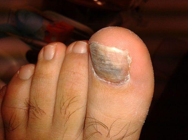 Los hongos de las uñas de mis pies destruyeron mi vida hasta que encontré como destruirlos a ellos