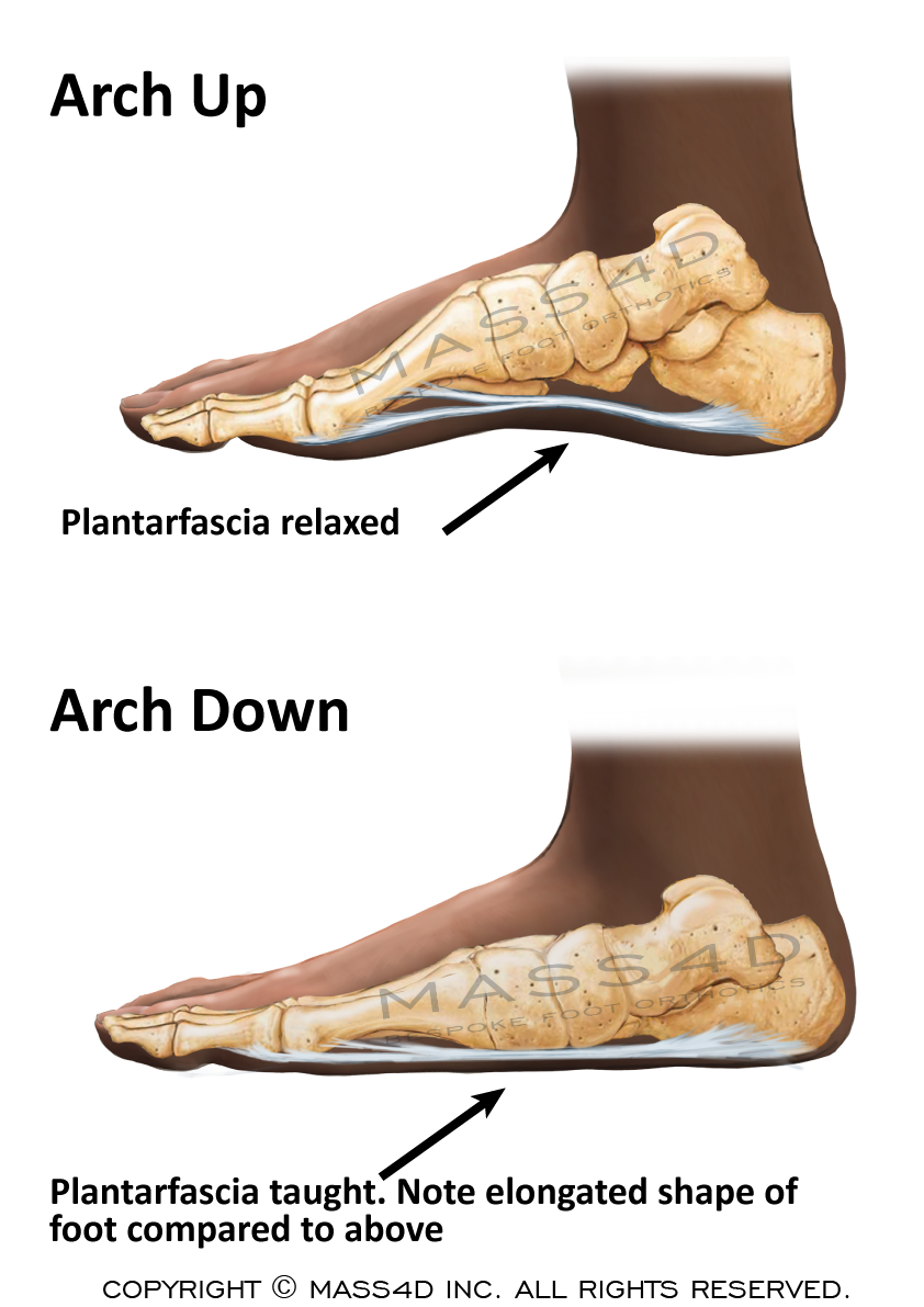 Flattened Arches Cause The Foot To Become Longer This Causes