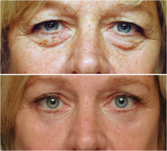 Blepharoplasty Before and After eyelidsurgerybefore