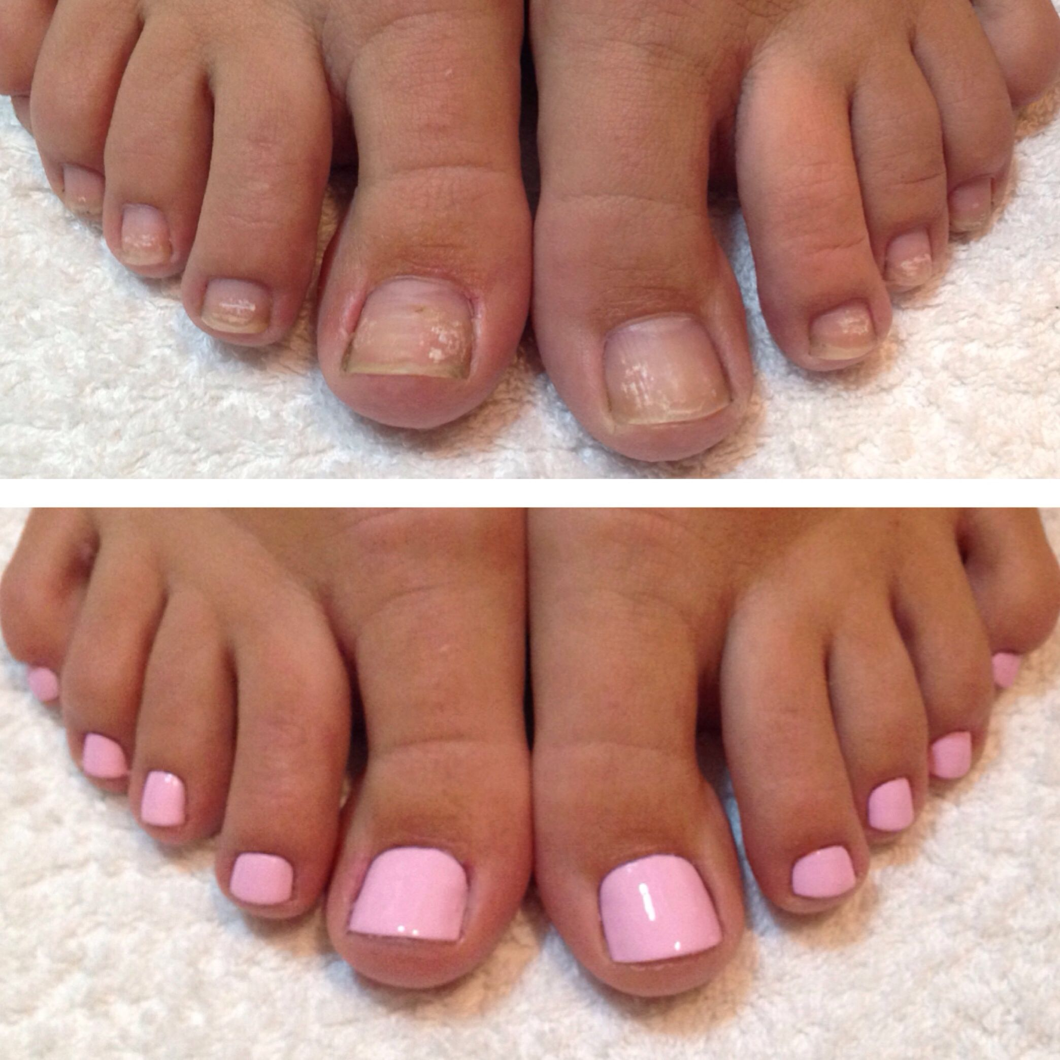 Before And After Pedicure Www Facebook Rachaelsimmshairmakeupandbeauty