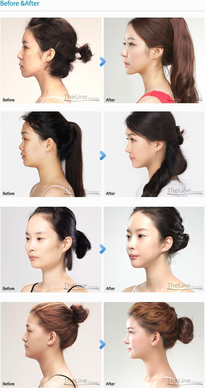 Barbie Nose Surgery Korea... Rhinoplasty surgery, Nose