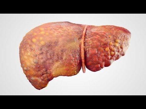 cómo eliminar la grasa del hígado graso