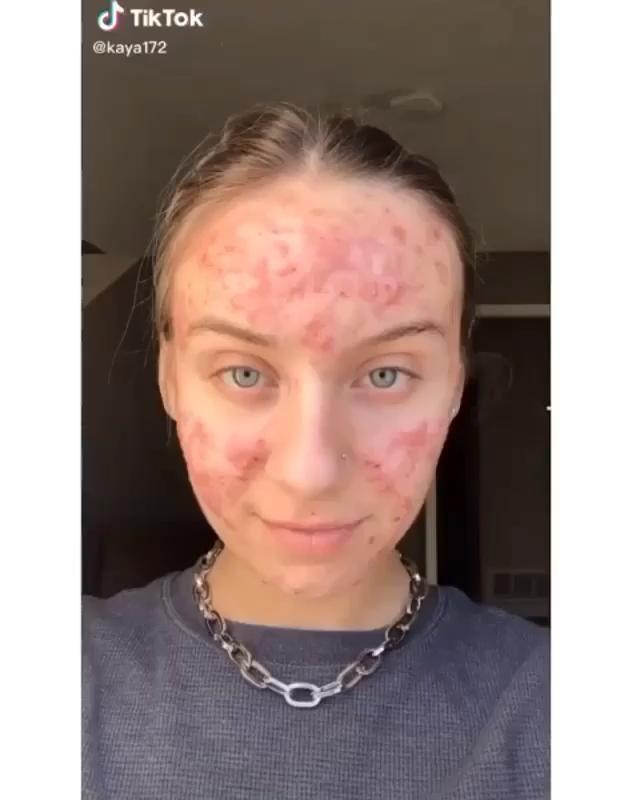 Want Clear Skin?