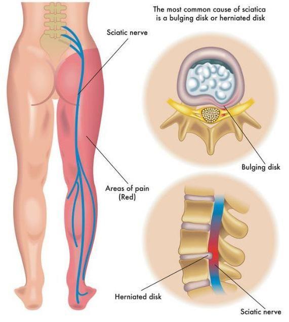 sciatica | uber healthy | pinterest | sciatic nerve relief, Cephalic Vein