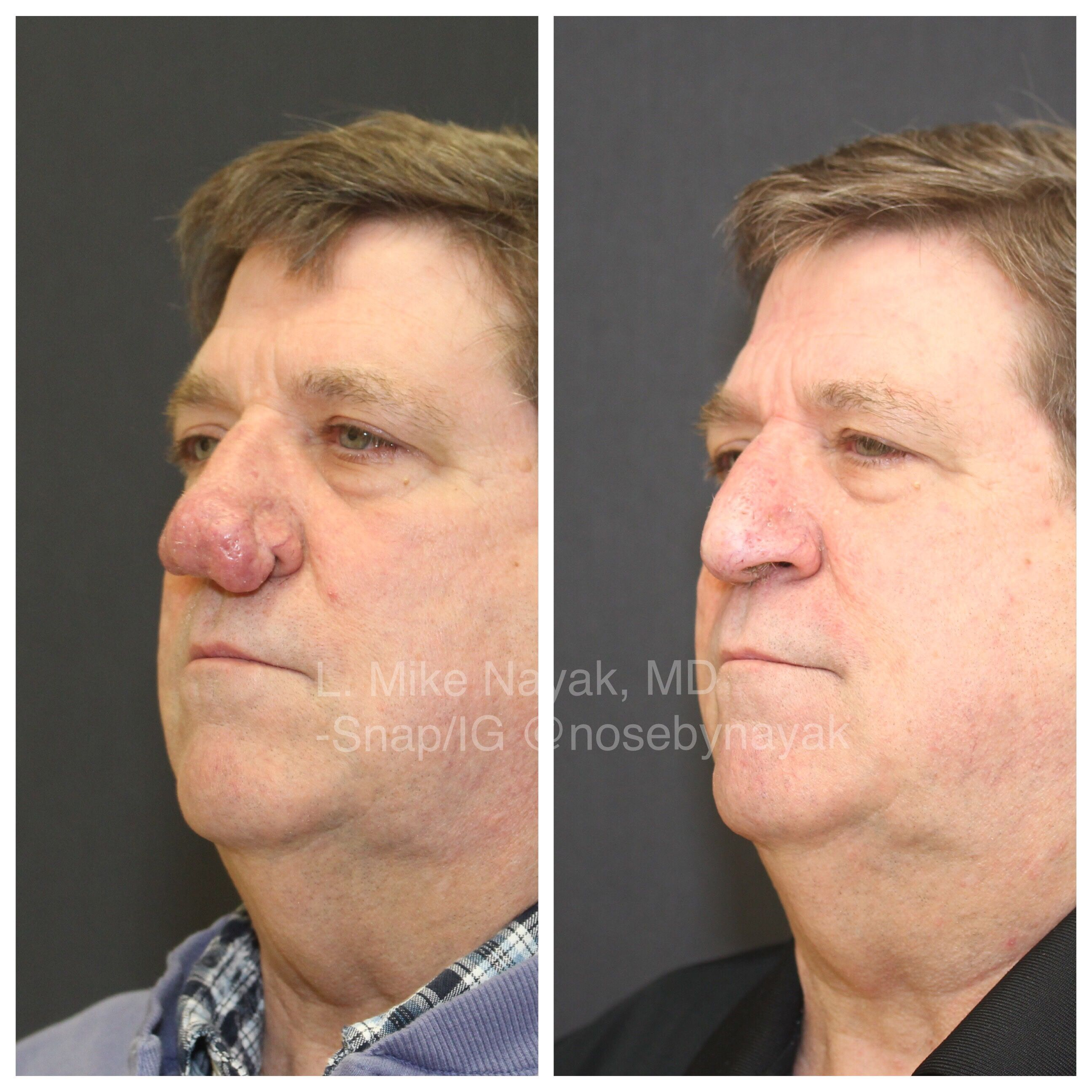 Rhinophyma Before After Bulbous Nose Oil Gland Plastic Surgery