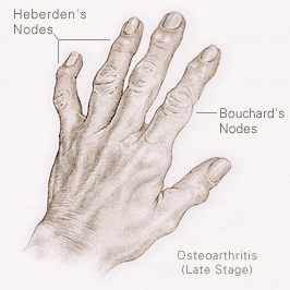 Natural Remedies For Heberden S Nodes