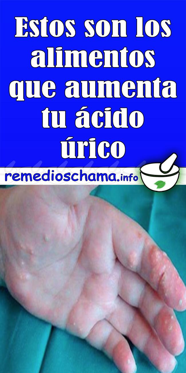 el pan sube el acido urico