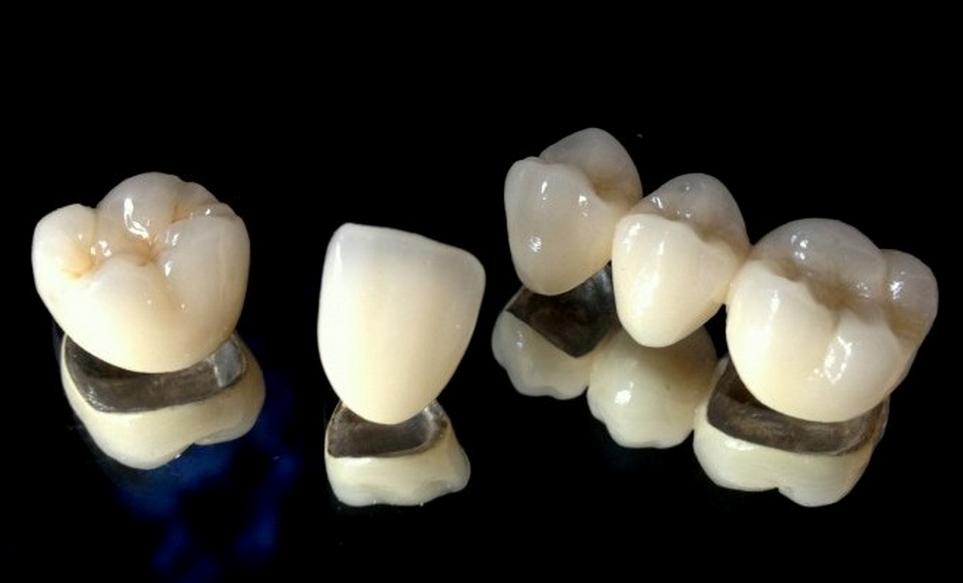 PFM Dental Crowns and PFM Bridge | Dental Education | Pinterest