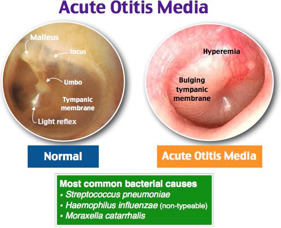 rch guideline acute otitis media