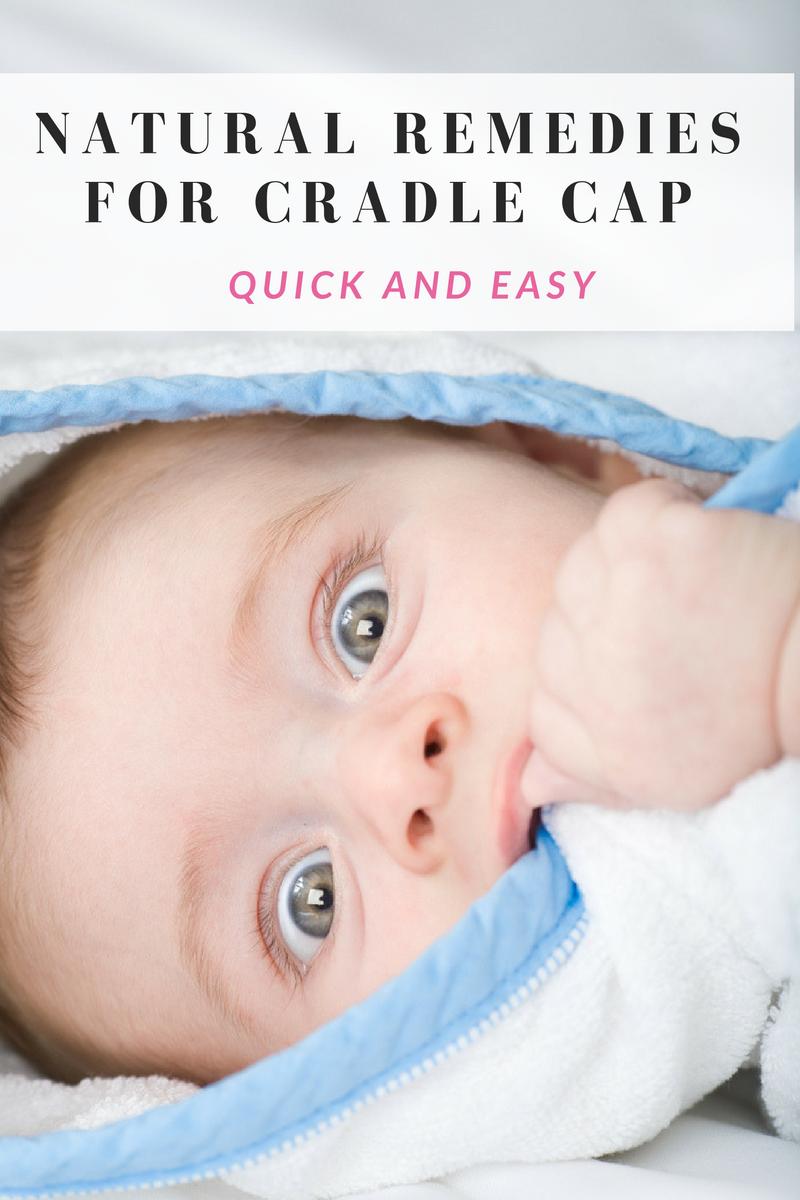 Natural Remedies For Cradle Cap Cradle Cap Remedies Baby Sleep Book Cradle Cap