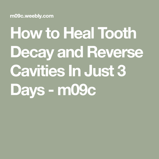 Majestic Tooth Decay Study #dentistrystudent
