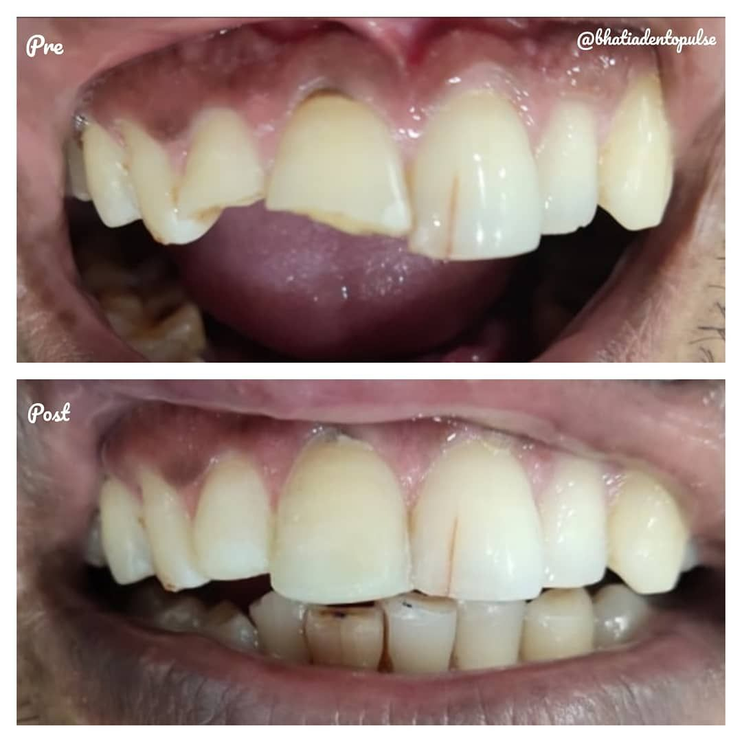 Composite Restoration Tooth Colored Filling Done For These Broken Front Teeth No Cap Was Given For T Tooth Colored Fillings Composite Fillings Front Teeth