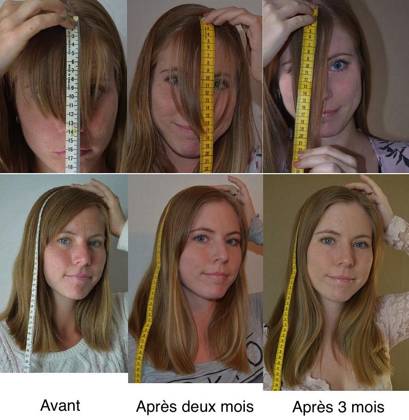 Que faire pour accelerer la pousse des cheveux