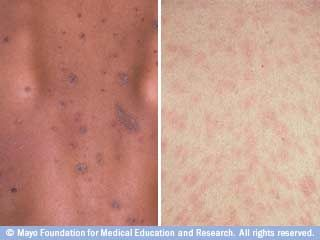 Pin On Dermatitis