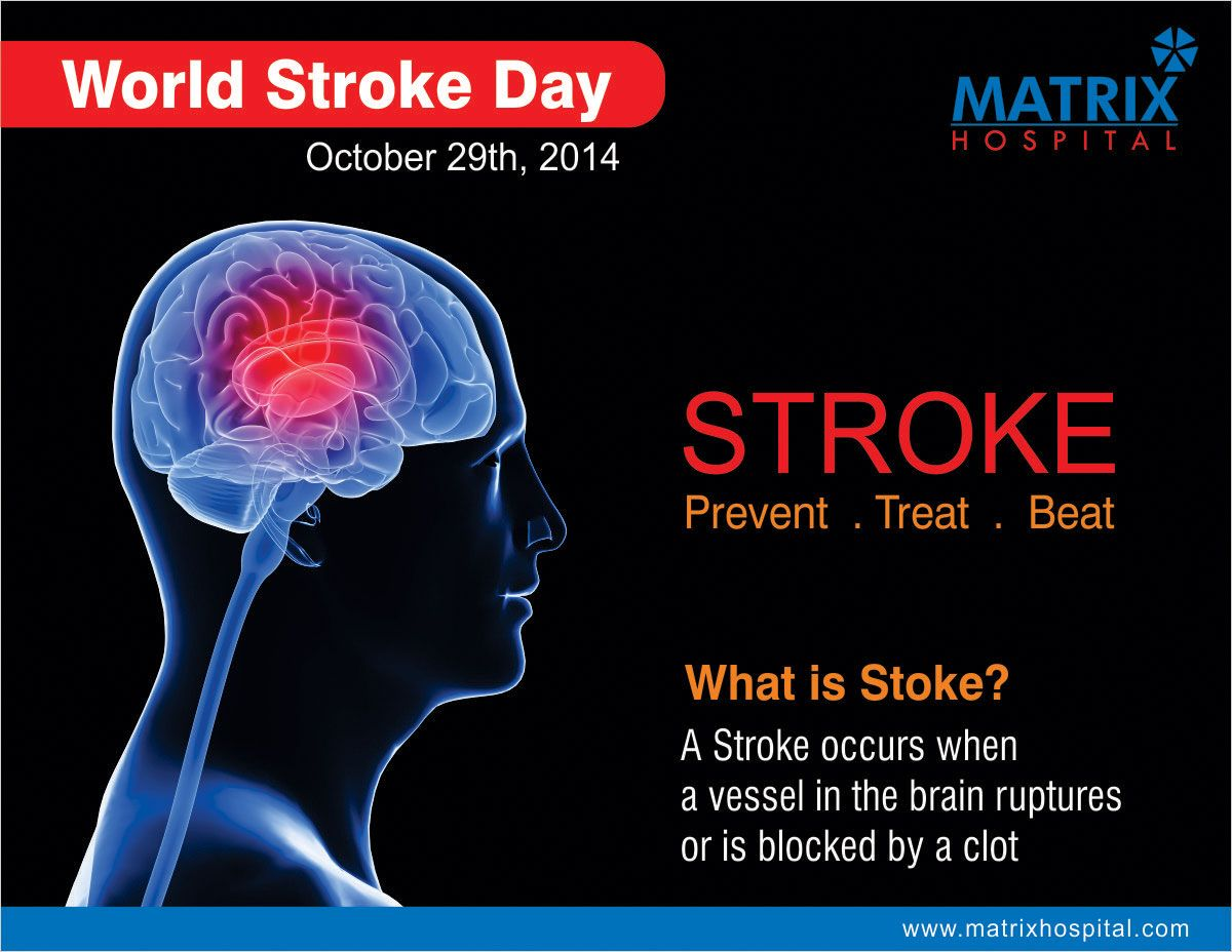 Matrix Hospital World Stroke Day 29 Oct What Is The Stroke A Stroke Occurs When A Vessel In The Brain Ruptures Or Is Blocked By World Stroke Day Vessel Day