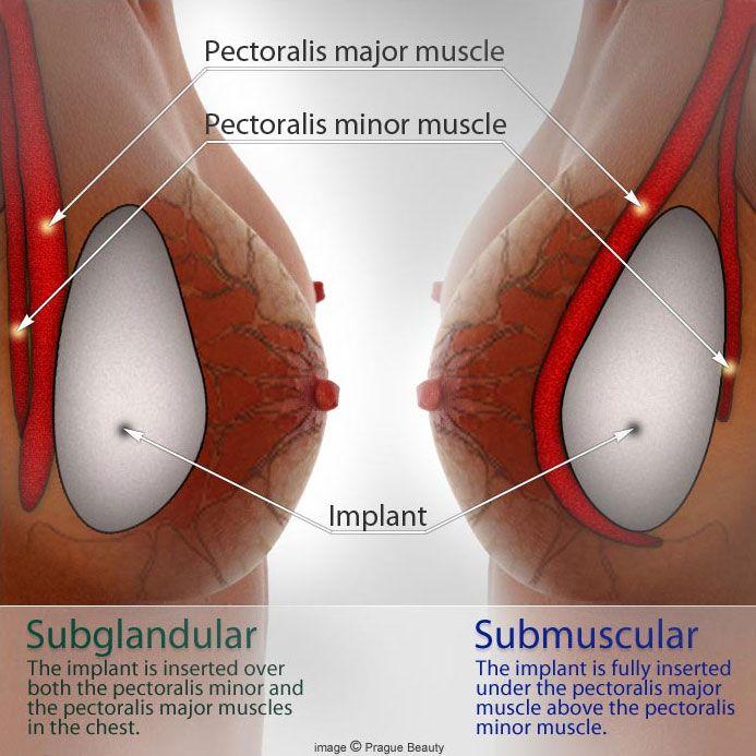 breast enlargement side effects