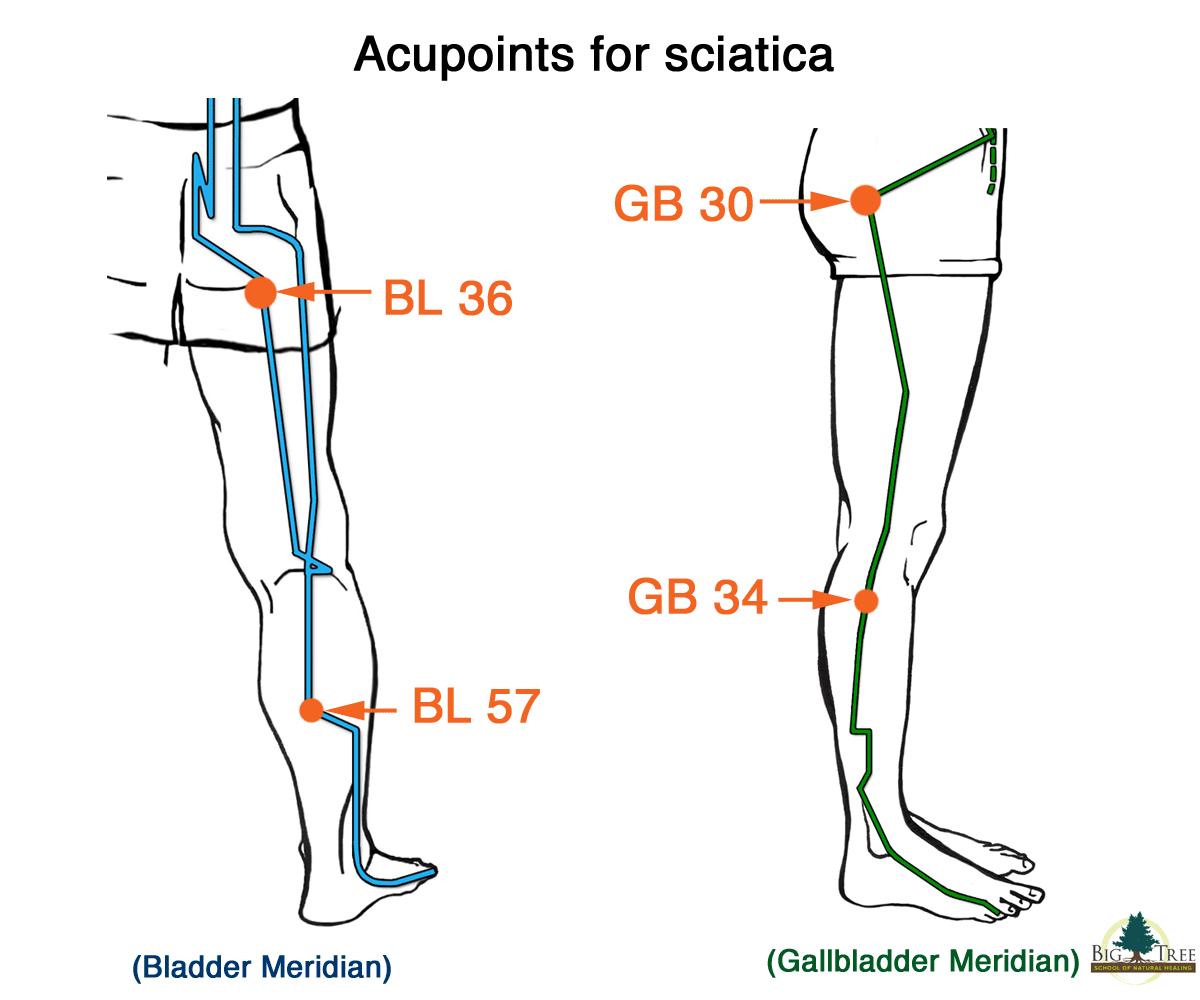 acupuntura para dor ciatica