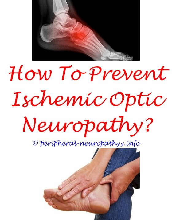 differential diagnosis diabetic neuropathy - peachtree city neuropathy  relief center.neurotalk peripheral neuropathy can you