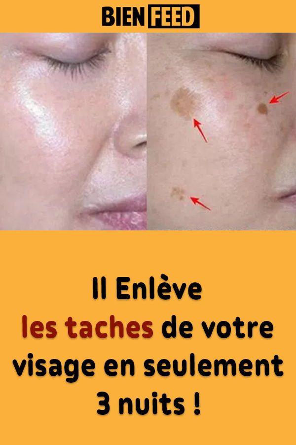 Il Enleve Les Taches De Votre Visage En Seulement 3 Nuits Tache Brune Visage Tache Visage Beaute Du Visage