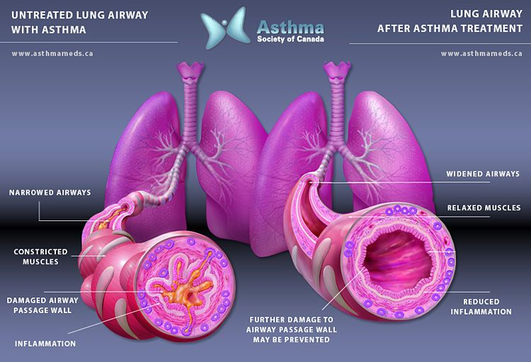 Anatomy Of An Asthma Attack Health And Wellness Pinterest Asthma