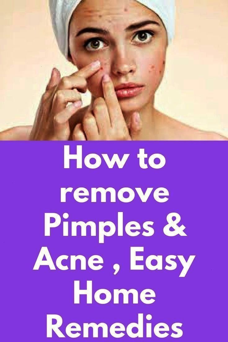 remove Pimples  Acne  Easy Home Remedies and Doctors advice How to remove Pimples  Acne  Easy Home Remedies and Doctors advice  Time to check your cupboards for these imp...