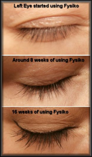 fysiko before and after