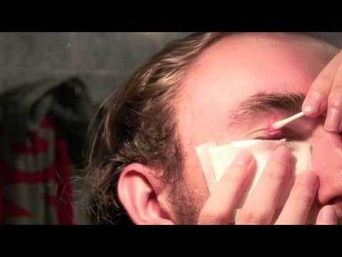 how to get rid of watery eyes and nose