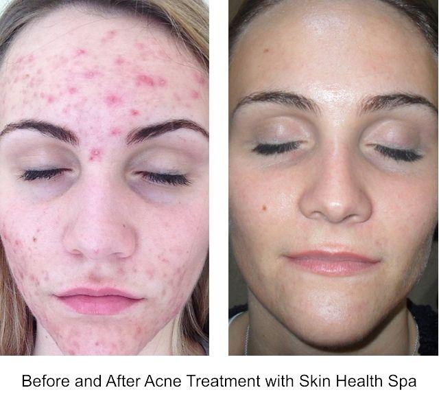 Image result for skin health spa acne