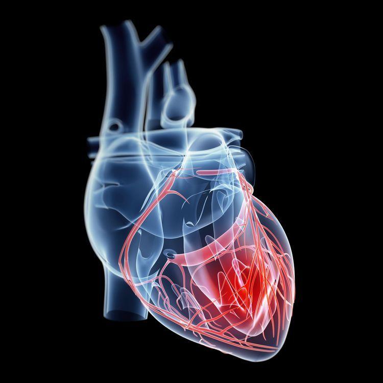 Heart Disease Cvd Women And Heart Disease Pinterest Heart