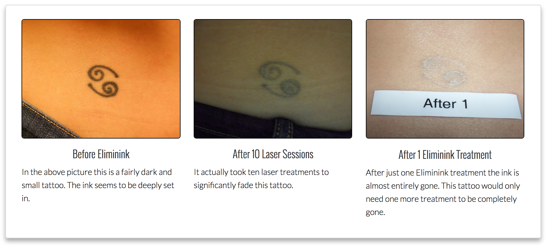 Eliminink Before and After Tattoos, Tattoo removal cost