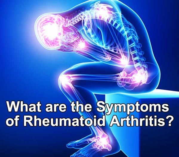 What are the symptoms of rheumatoid arthritis description from what are the symptoms of rheumatoid arthritis rheumatoid arthritis is an autoimmune disease that results in a type of systemic inflammatory disorder that publicscrutiny Choice Image