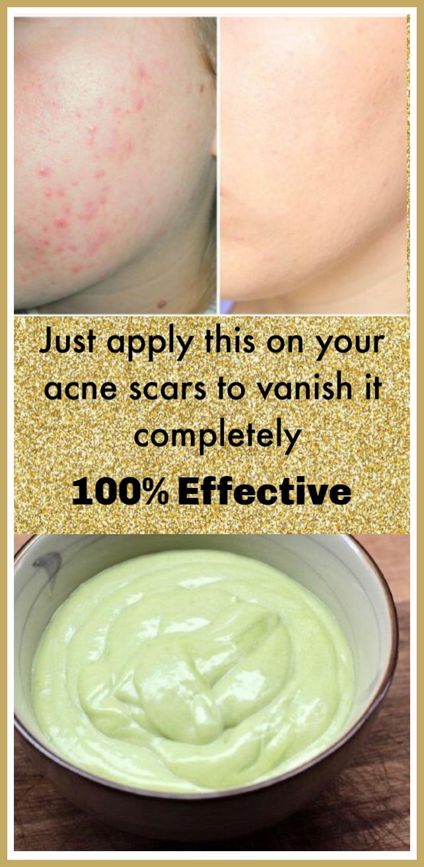 DIY Homemade Face Moisturizer Cream For Acne And Sensitive Skin #homemadefacelotion