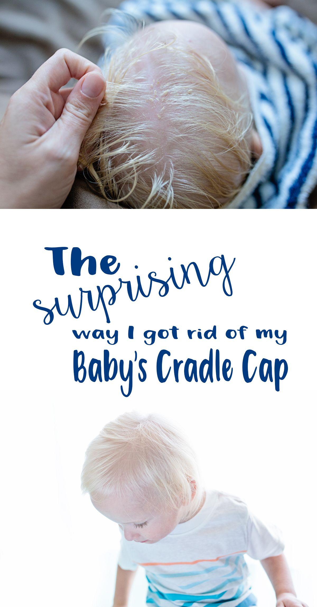 Toddler Hair Yikes Green Family Blog 2020 Baby Cradle Cap Toddler Cradle Cap Cradle Cap