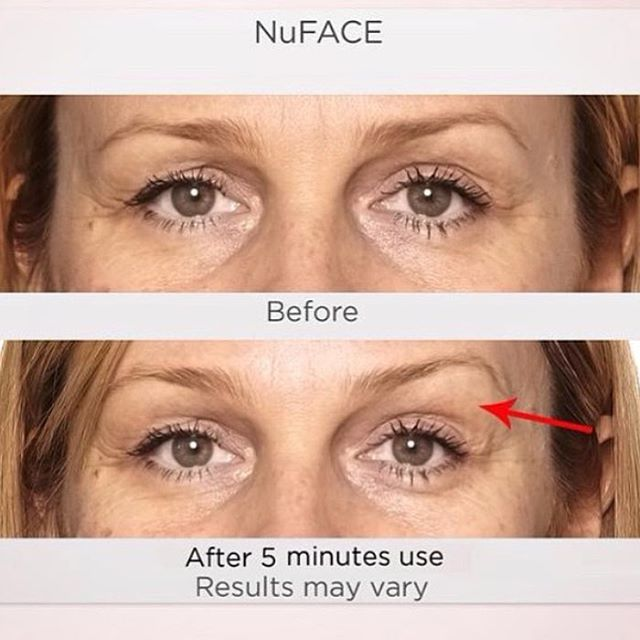 The Spa At River Ridge On Instagram After 5 Minutes The Results May Be Slight But We Think They Re Ve Nuface Before And After Nuface Plastic Surgeon Office