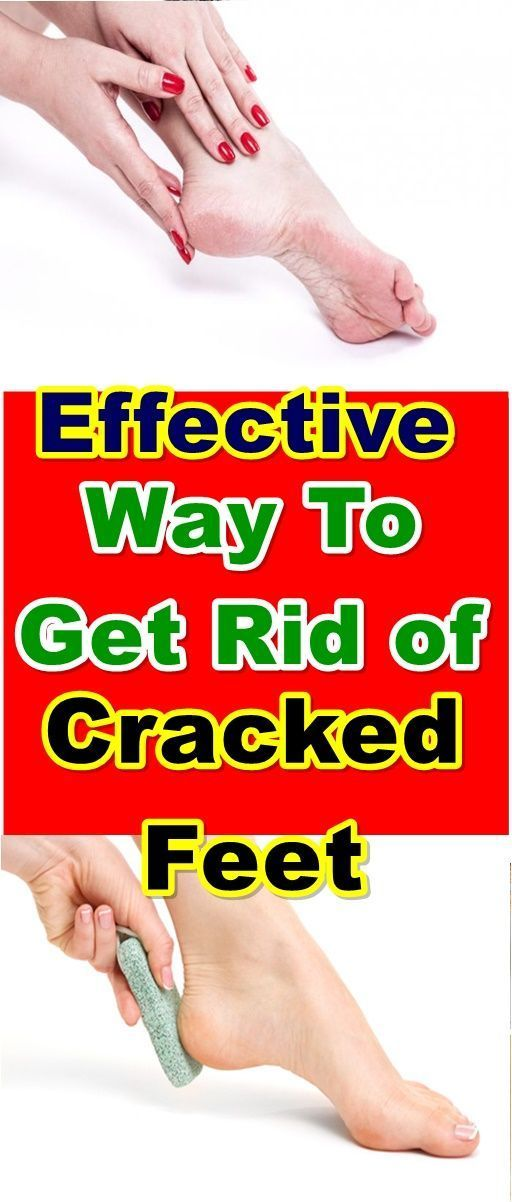 To Get Rid of Cracked Feet #crackedskinonheels Cracked heels are a common foot problem for the men and women. More no of adults are experience cracked skin on their feet. This can affect even the children's also, compared with the men this problem seems and affect women more often.  #crackedheel #crackedfeet #homeremedy #feet #barefeet #crackedskinonheels To Get Rid of Cracked Feet #crackedskinonheels Cracked heels are a common foot problem for the men and women. More no of adults are experien #crackedskinonheels