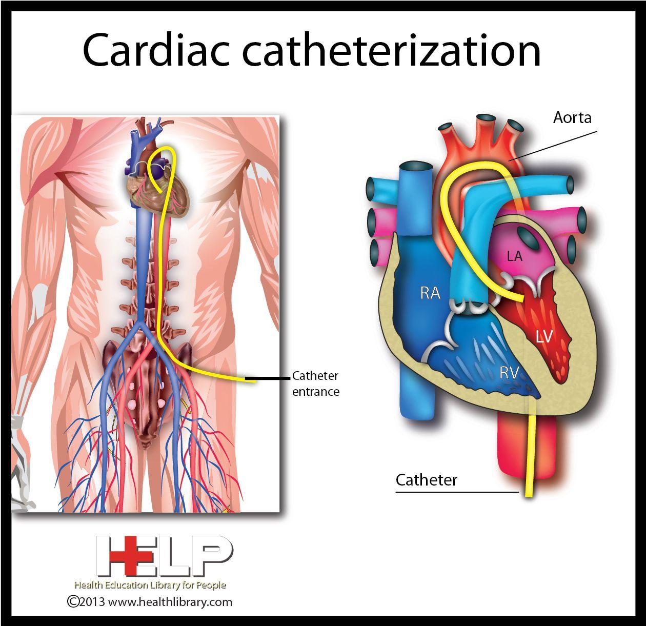 Cardiac Catheterization | Nursing Supplies | Pinterest | Cardiac ...
