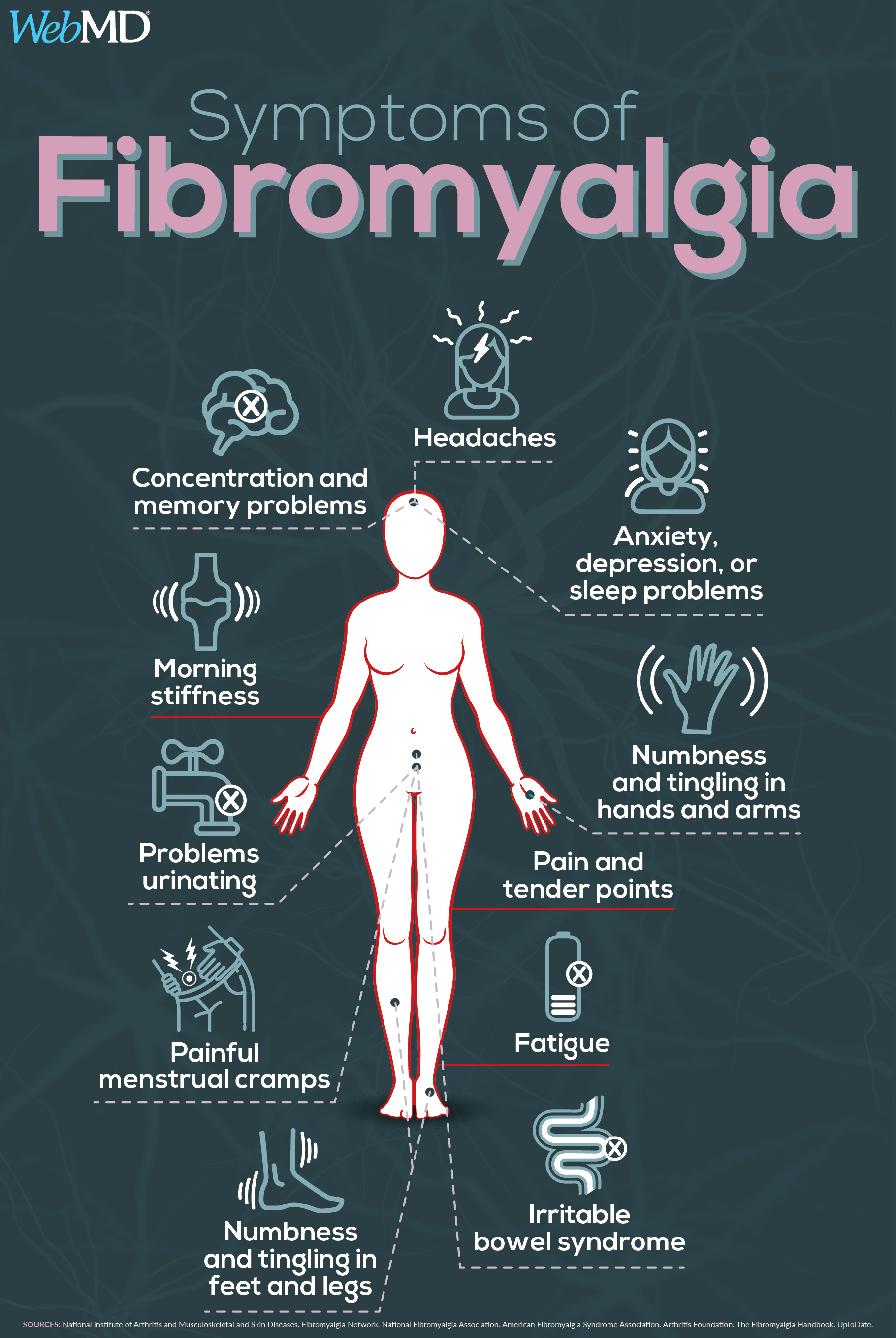 a Visual Guide to Understanding Fibromyalgia