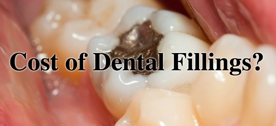 What Affects The Cost Of Dental Fillings Dental Fillings Dental Filling