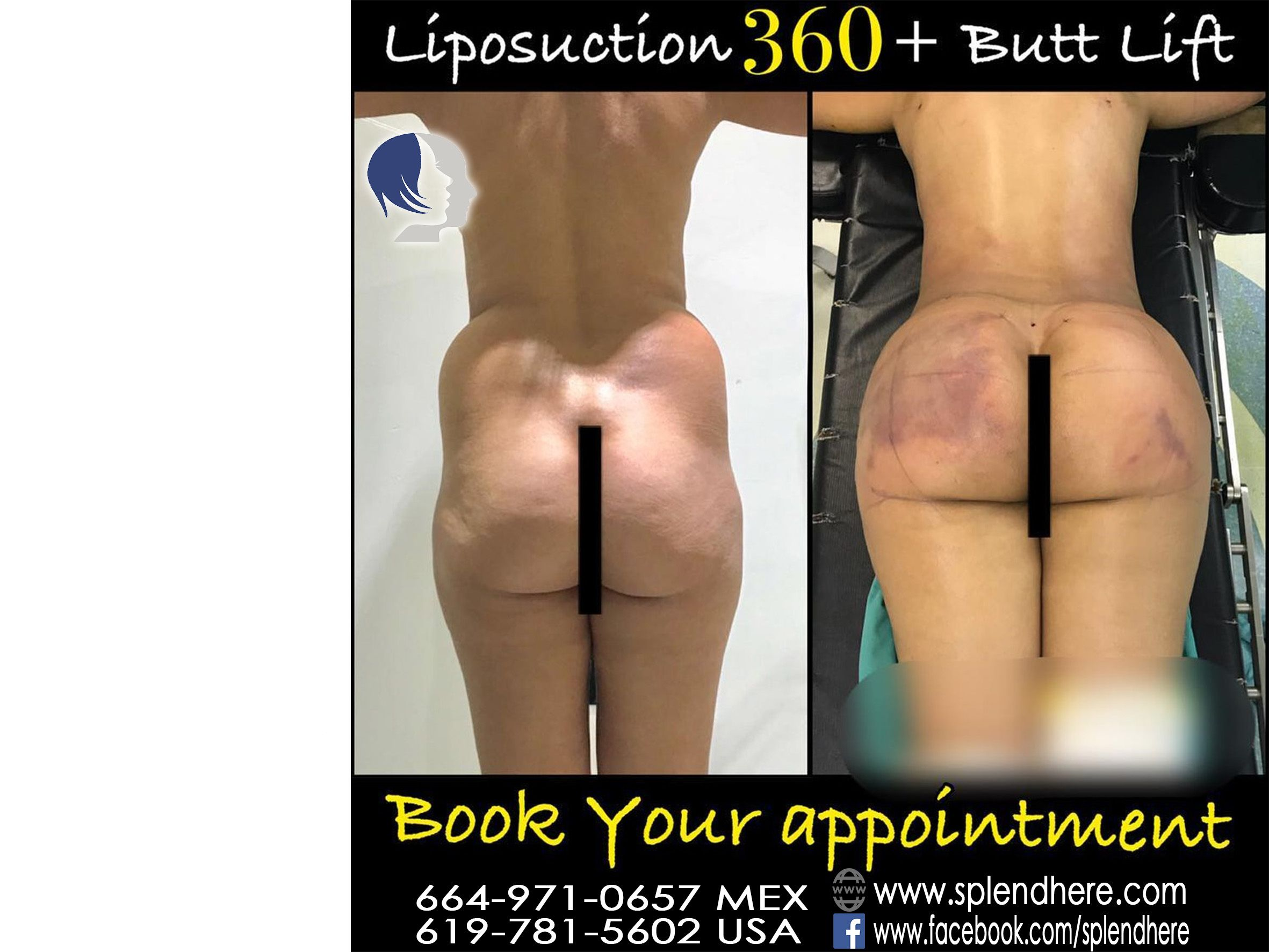 Good morning,Butt Augmentation and butt Lift , Body contouring with