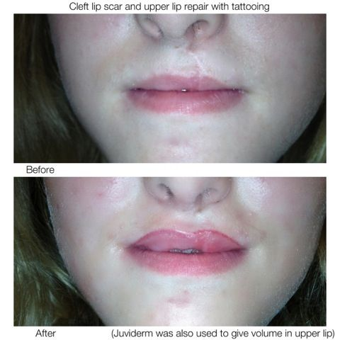 Can Facelift Scars Be Successfully Covered with a ...
