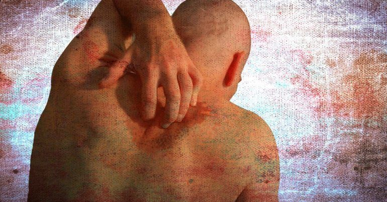 What Does An HIV Rash Look Like?   HIV/AIDS   Aids symptoms