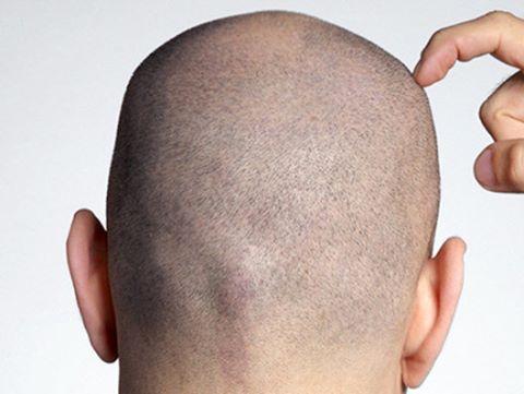 الدكتور وسام عضاضة مركز زراعة الشعر في دبي زراعة الحواجب العنوان و خريطة الوصول رقم الهاتف معلومات عن Hair Transplant Best Hair Transplant Cool Hairstyles