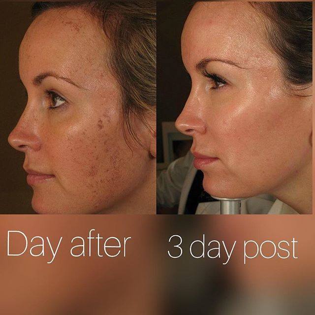 Bbl Photofacial Get Rid Of Summer Sun Damage With Our 99 Photofacial For Vip Members And 150 For Non Members For The Mo Face Treatment Med Spa Photofacial