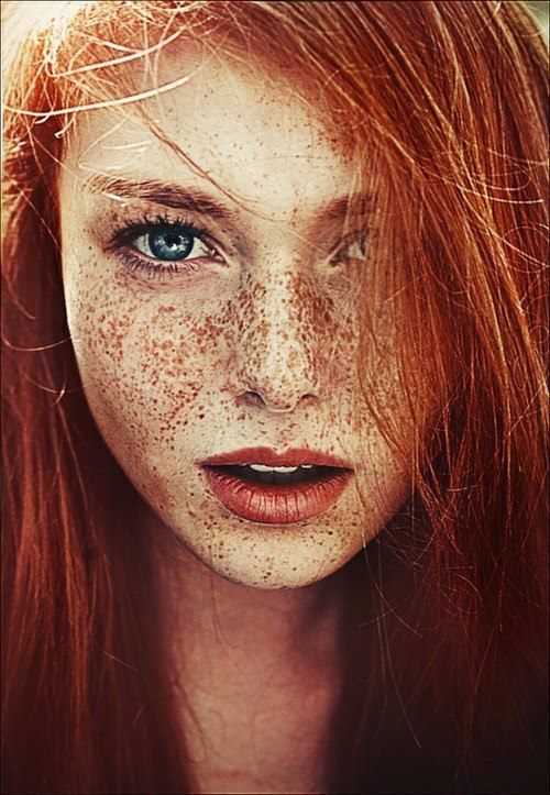 Sommersprossen rote haare keine Hat es