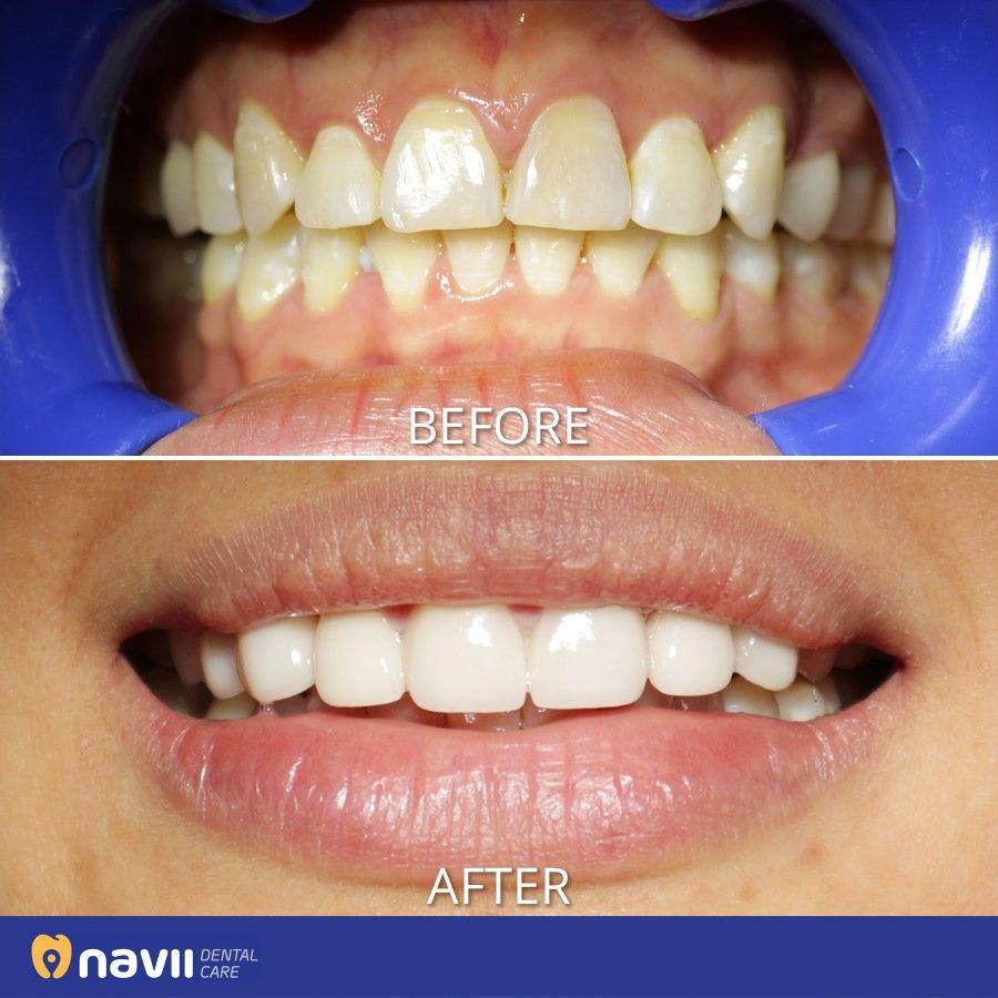 Pin By Snigdha Mukherjee On Tooth Braces Dental Care Porcelain Veneers Dental